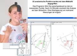 noXrayCeph kieferorthopädische Vermessung 55 anatomische Punkte werden gemessen